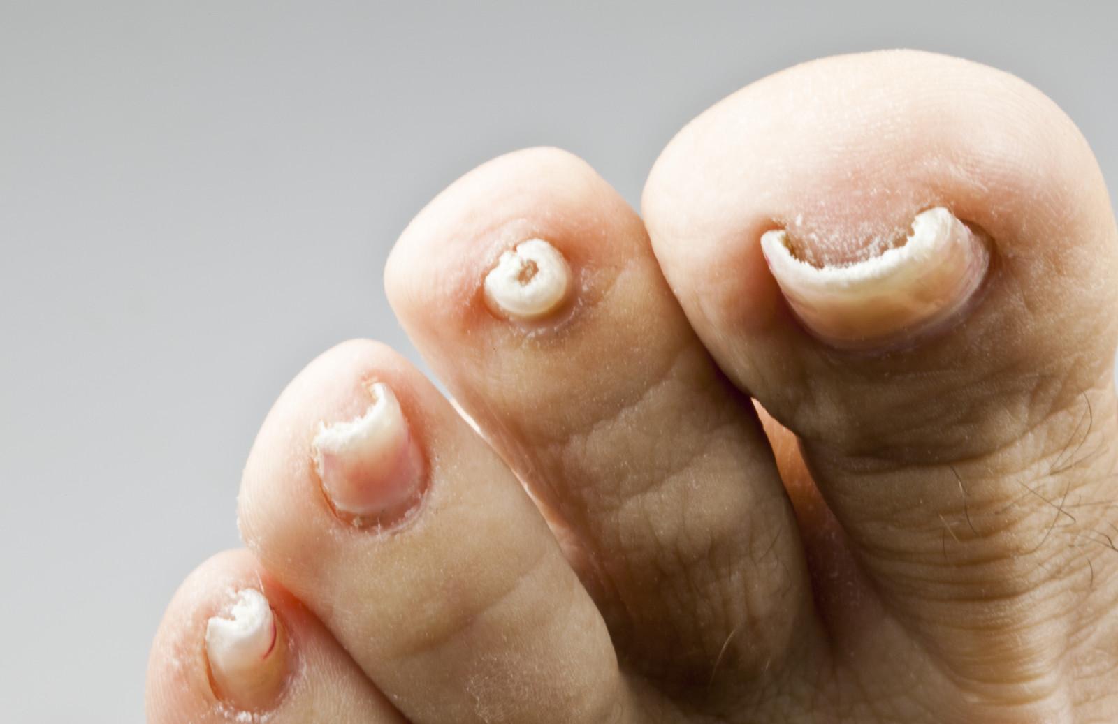 Nagelpilz: Ursachen Symptomen und Mittel gegen Nagelpilz