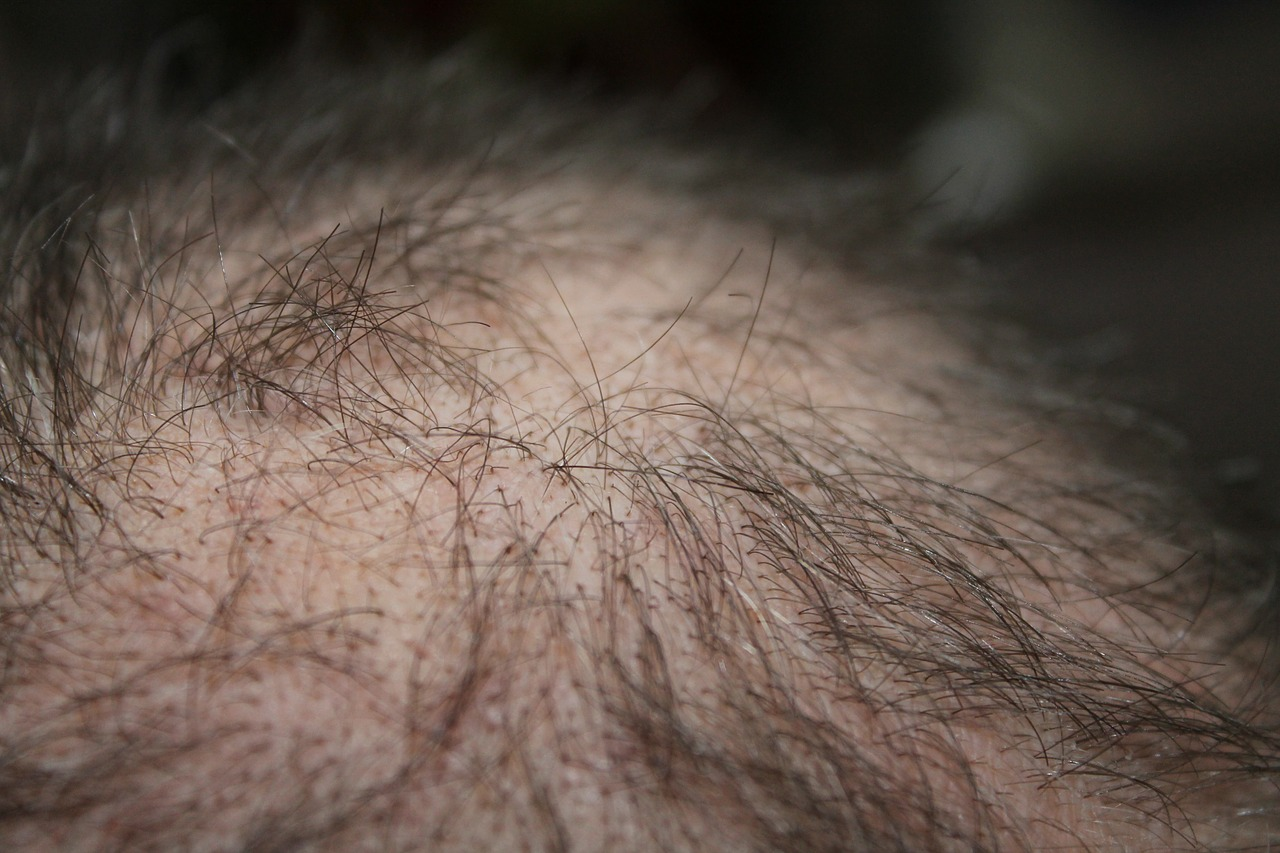 Haarausfall bei Männern - Ursachen und Lösungen